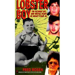 Lobsterboy